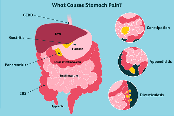 What are other Reasons for an Upset Stomach