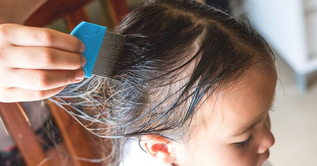 Let's find out if black people can get lice or not!