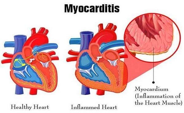 Myocarditis-COVID-19